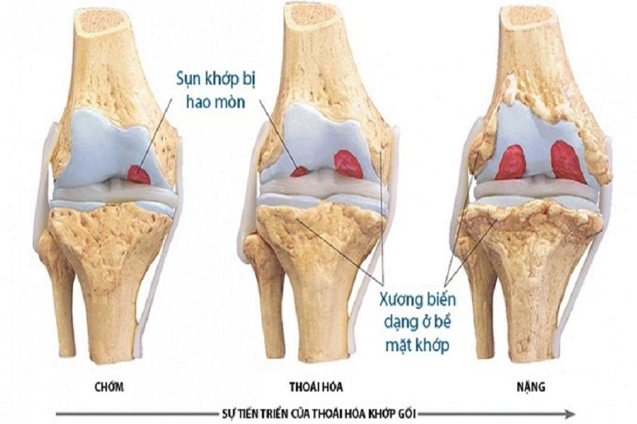 Sụn khớp bị bào mòn theo thời gian, xương tại bề mặt khớp bị biến dạng do cọ xát .