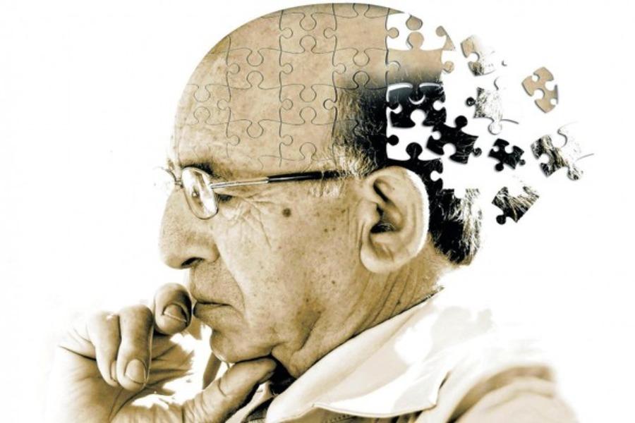 Minh hoạ người già bị suy giảm trí nhớ. Phần sau đầu bị vỡ vụn từng mảnh
