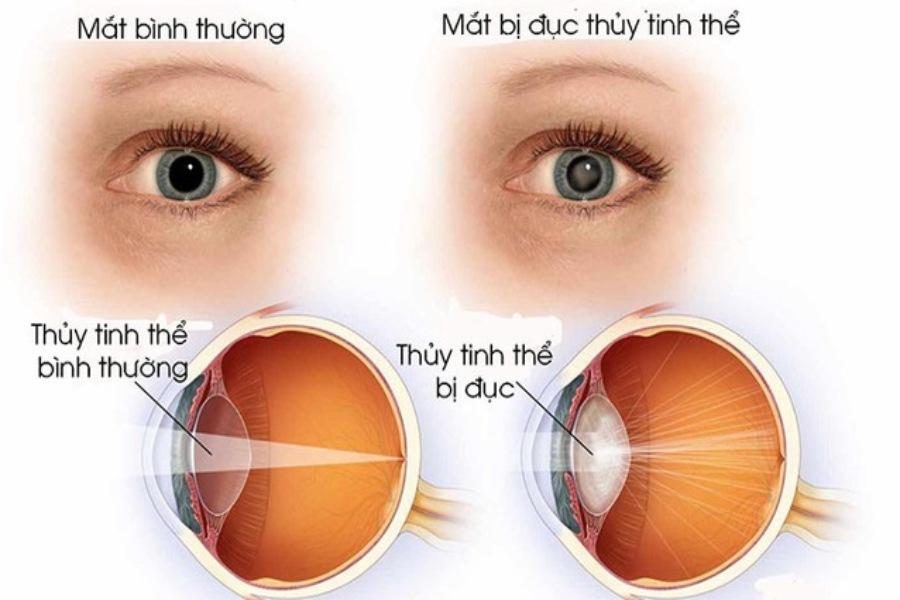 Mắt bình thường và mắt bị đục thuỷ tinh thể