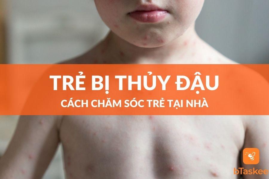 Cách chăm sóc trẻ bị thủy đậu