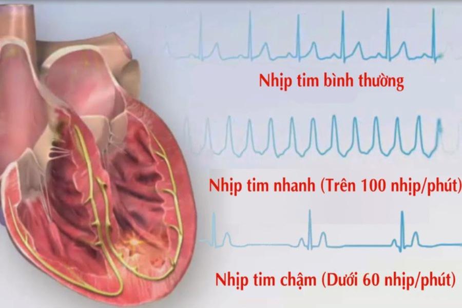 Thông qua nhịp đập để nhận biết nguy cơ bị rối loạn nhịp tim ở người già
