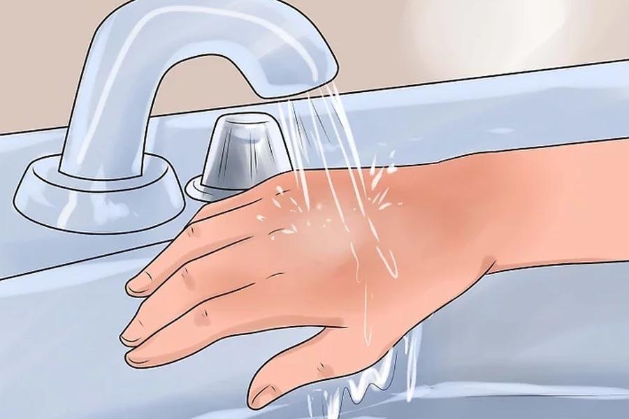 Rửa vết bỏng dưới vòi nước lạnh